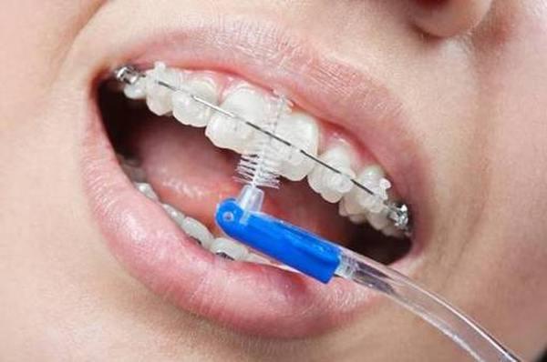 Рейтинг зубных ершиков