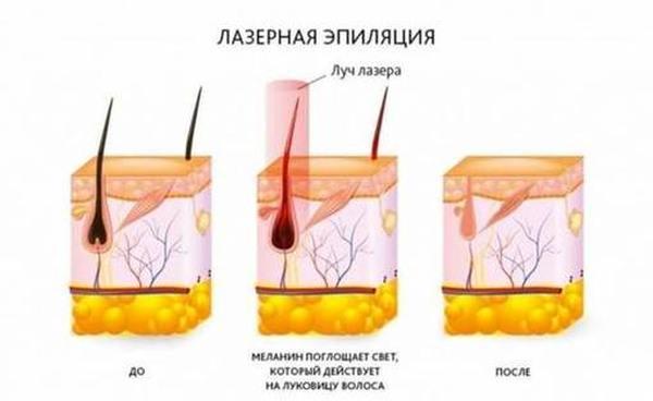 Лучшие клиники лазерной эпиляции в Новосибирске
